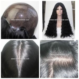 A cheveux injectes dans le scalp