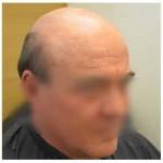 Comment prévenir la perte de cheveux saisonnière