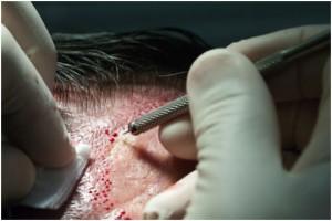 Blog 20160603 implant-cheveux_